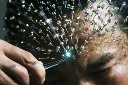 another overhyped acupuncture study misinterpreted