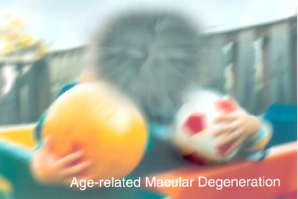 Simulated vision for a patients with macular degeneration. Image courtesy of the National Eye Institute, National Institutes of Health