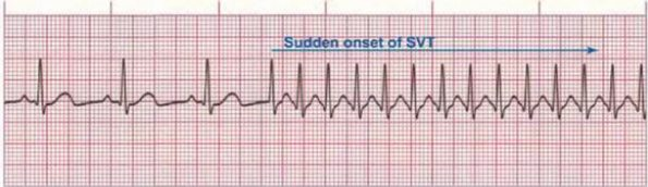 What Is Svt >> Neck Adjustment For Newborn Supraventricular Tachycardia More