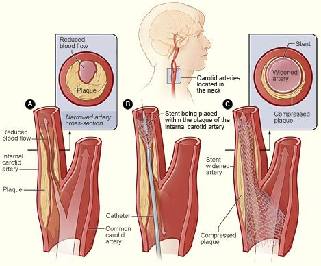 One treatment for carotid artery stenosis: stent placement