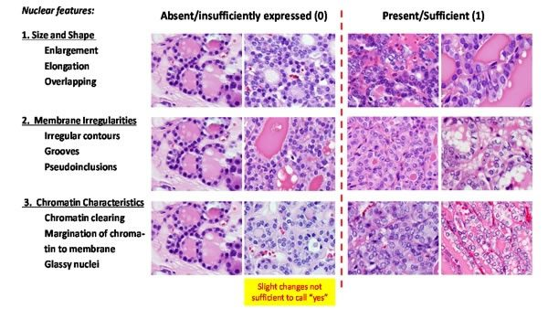 This is a panel showing some of the pathologic criteria for distinguishing invasive encapsulated follicular variant of papillary thyroid carcinoma from noninvasive. This is real science. Sayer Ji's rant is not.
