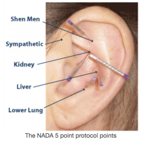 Nada For Nada Acudetox Not Effective In Addiction