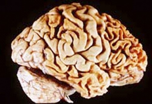 A human brain showing fronto-temporal lobe degeneration, often associated with dementia